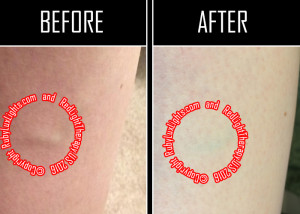 red light therapy before and after leg veins 5