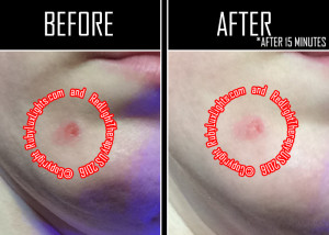 red light therapy before and after photos cystic acne wound 1