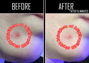 red light therapy before and after photos cystic acne wound 3