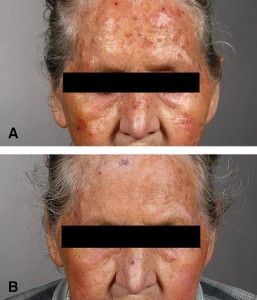 skin cancer before and after photo photodynamic therapy